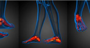 artrosi caviglia piede