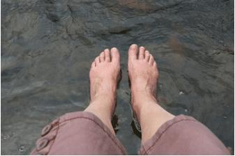 artrosi piede