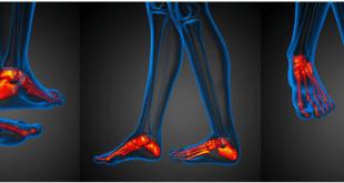dolore al piede